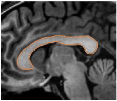 Image segmentation phd thesis